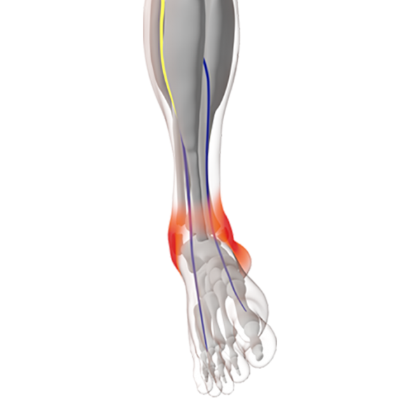 Pre-operative Oedema Reduction – Ankle Fracture